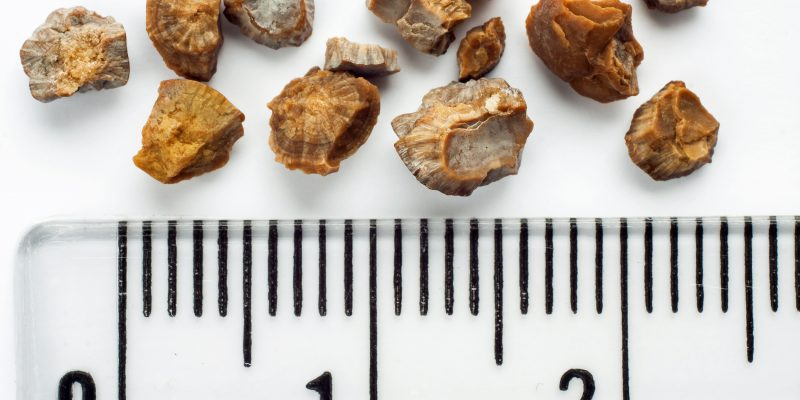 Kidney stones after ESWL intervention. Lithotripsy. Scale in centimeters
