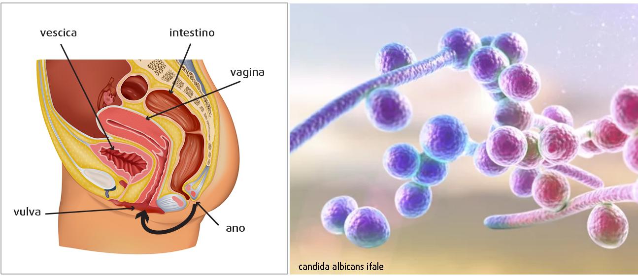 Vagina-e-Candida-albicans-ifale